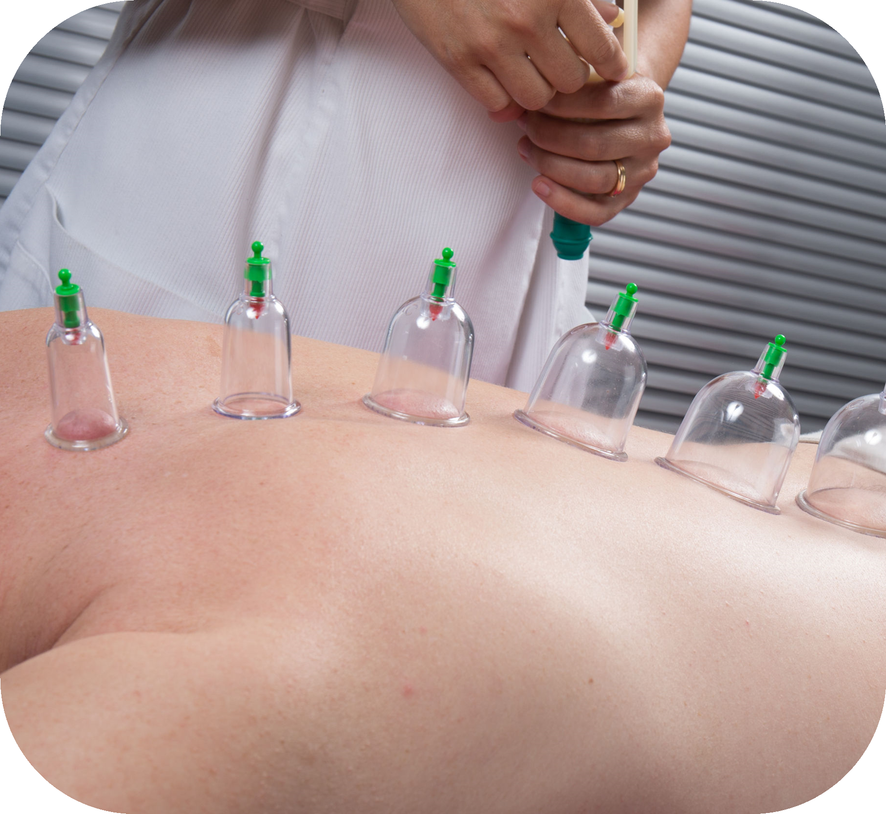 Pics Of Cupping: Federation Of Holistic Therapists Directory Service